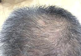 51岁,脱发20年是怎么恢复的?
