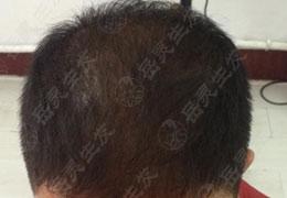 脂溢性脱发能治好吗?生发原理很关键