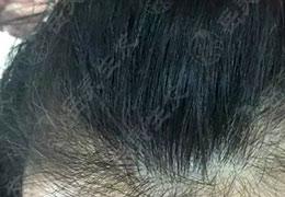 与白发say no!50岁白发60%是怎样转黑的