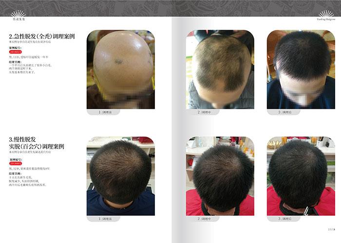 岳灵生发-掉发脱发都是哪些因素造成的?