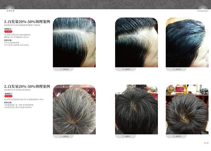 岳灵生发-脱发有白发是什么身体原因造成的?
