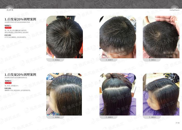 岳灵生发-孩子很小就有白头发是什么原因造成的?