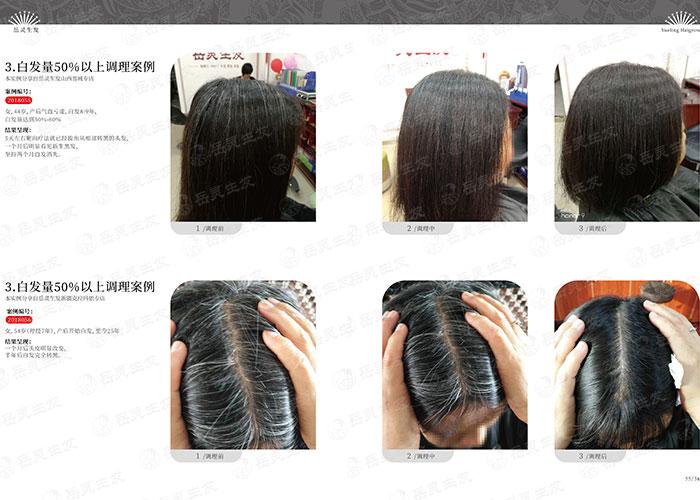 岳灵生发-黑发变白发是什么原因造成的?
