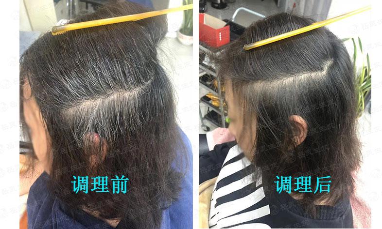 岳灵告诉你鬓角有白发的原因和如何去养发调理