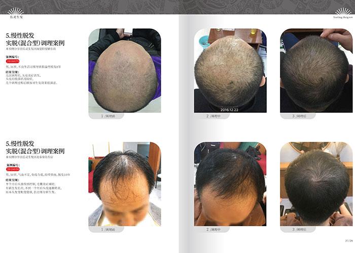 男性脱发的症状及脱发原因