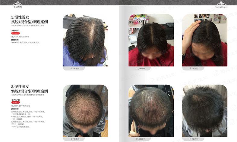 长期脱发怎么才能改善?