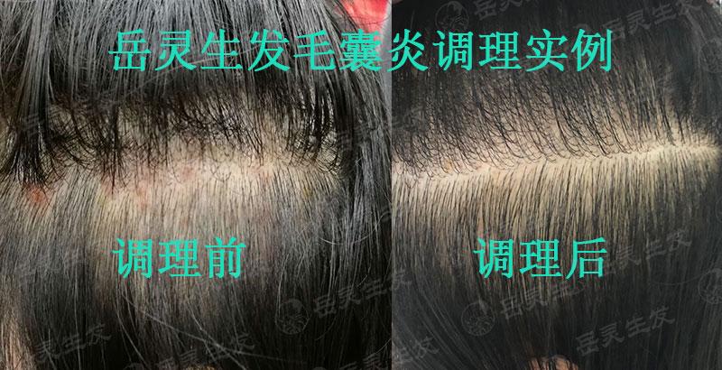头皮毛囊炎会引起脱发吗?