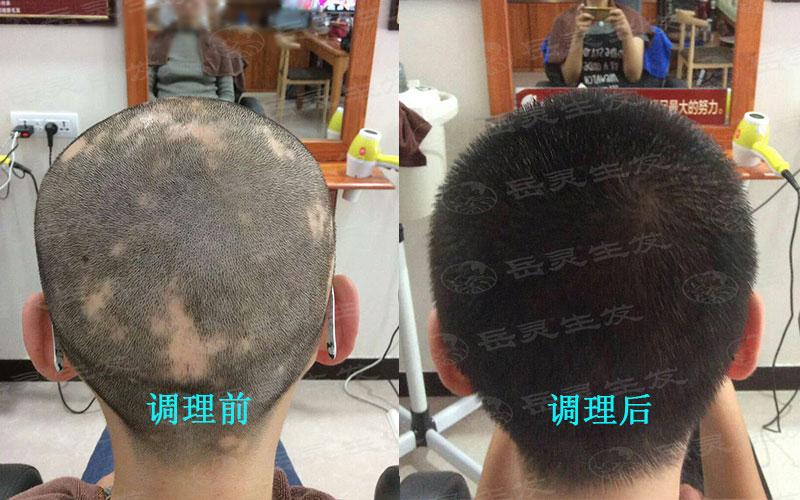 如何养发才能预防产后脱发