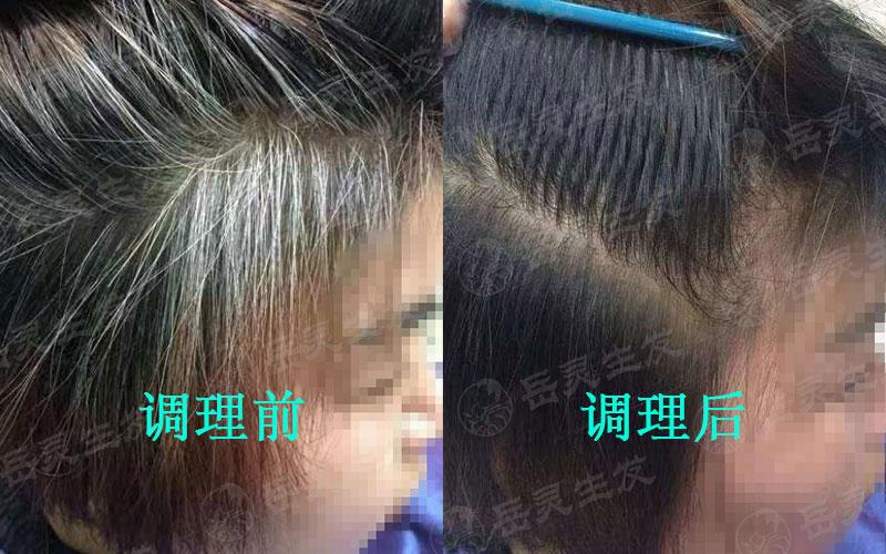 白头发出现的原因及如何预防白发
