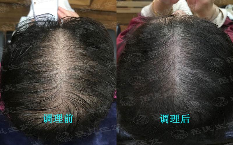 男人病理性掉发我们该如何防脱生发