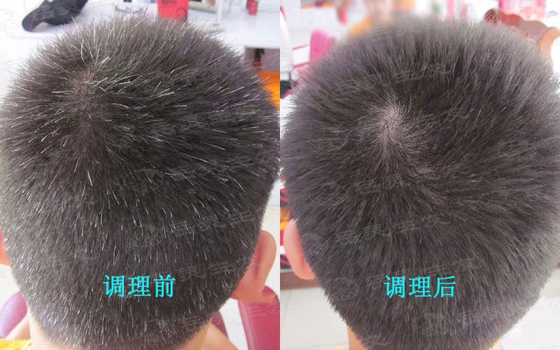 吃什么养发才能调理白发转黑发