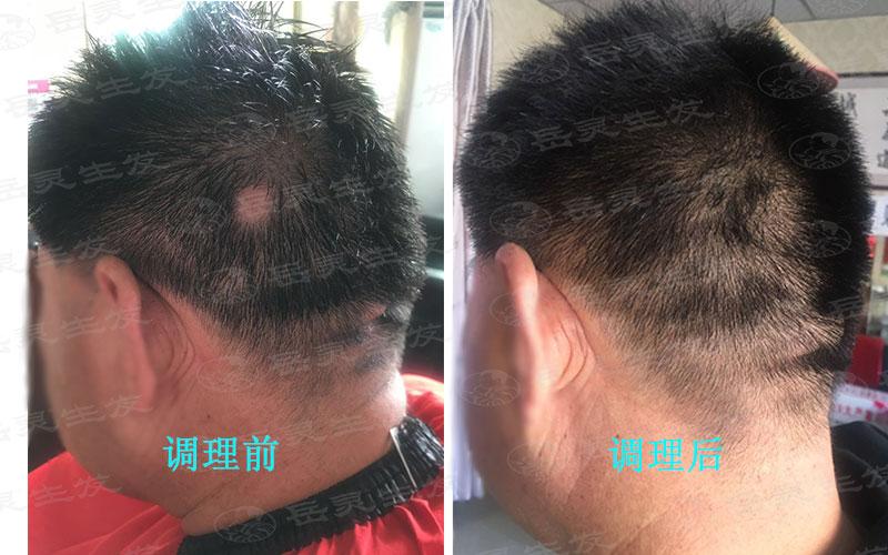 如何摆脱病理性脱发变生发