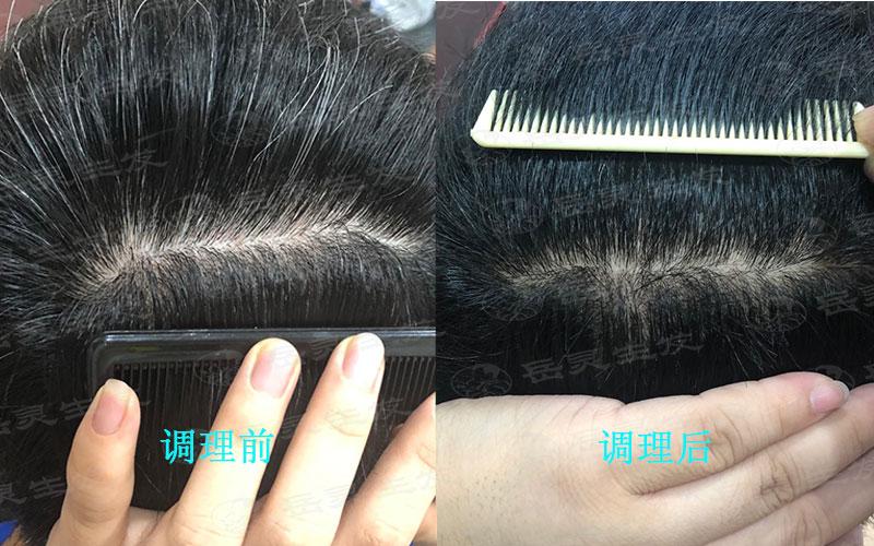 什么生发的方法能解决少年白发问题