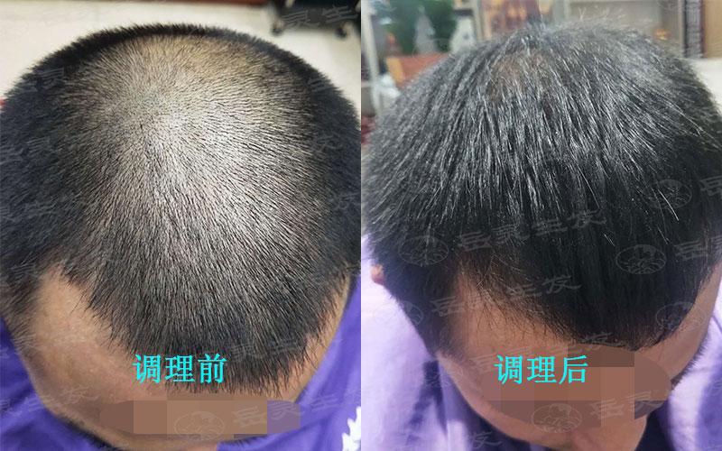 男性脱发想生发应注意的事项