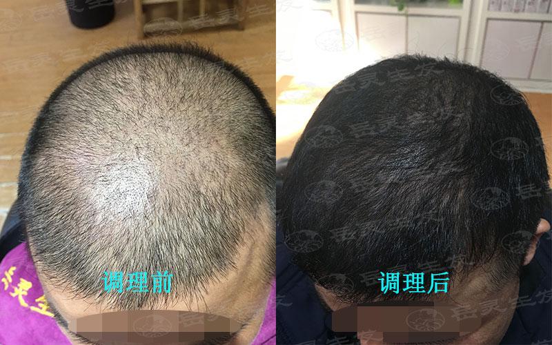 如何养发能防止脂溢性脱发而达到生发