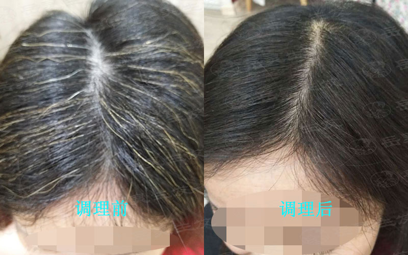 白头发吃什么膳食可以将白发转黑