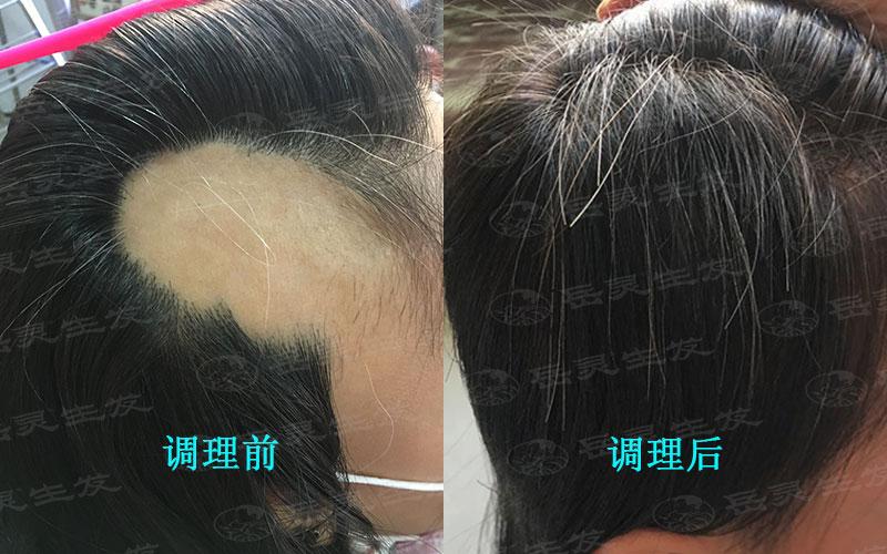 斑秃性脱发如何调理养发