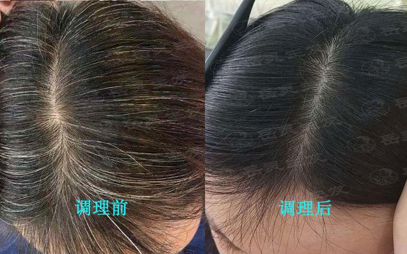 白头发变黑发的调理方法有哪些?