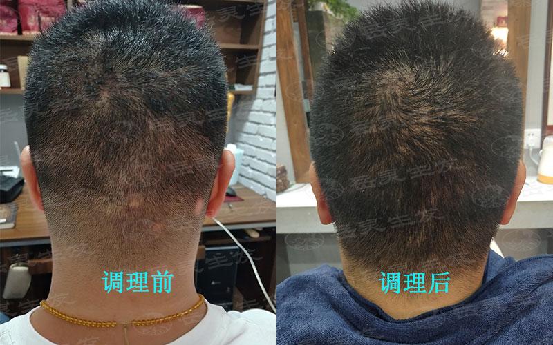 如何从根源摆脱脱发变生发