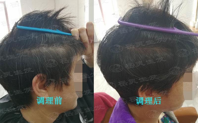 年轻人应该如何调理预防白发