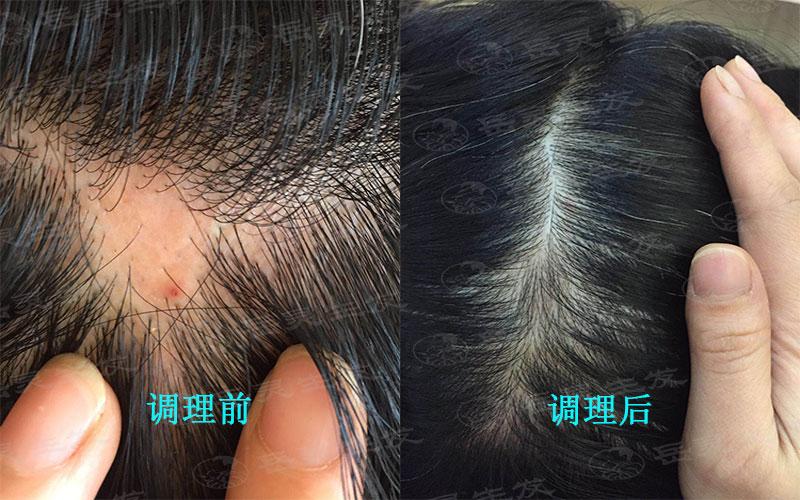 如何养发生发能起到防脱发的效果