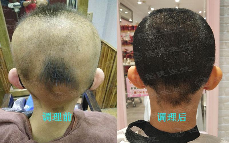 想要脱发变生发应该注意些什么
