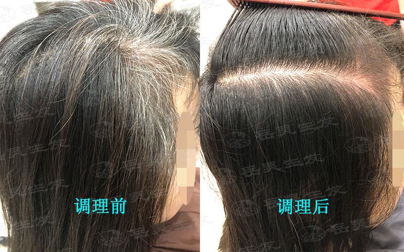 摆脱白发从健康生发调理做起