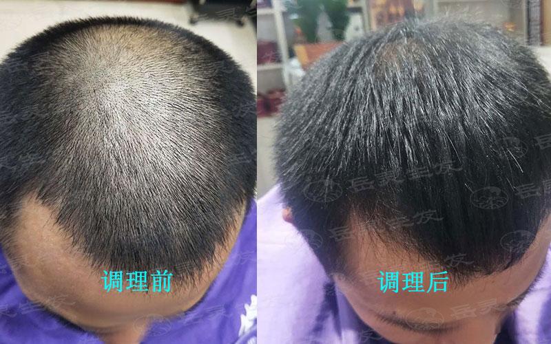 脱发的原因与如何去调理生发