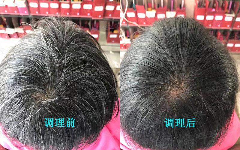 长白发的原因你都知道吗?