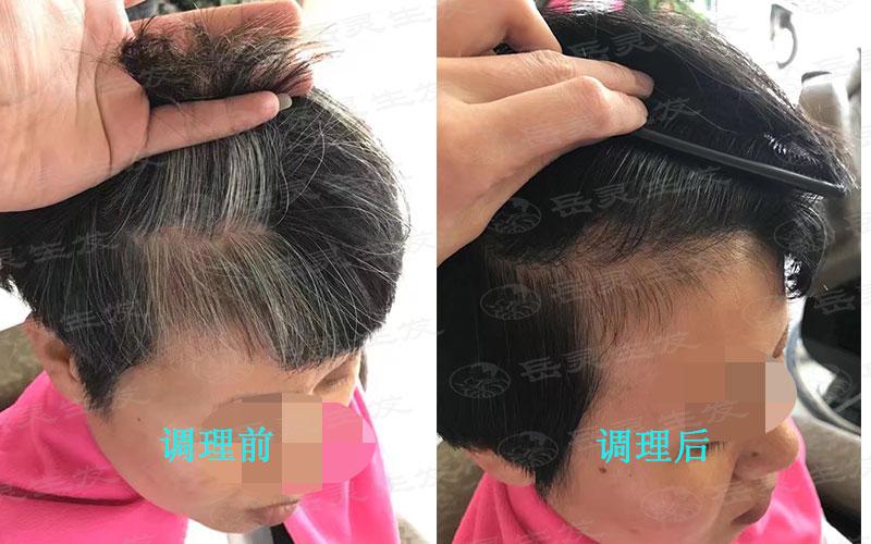 染白发是不可取的养发方法