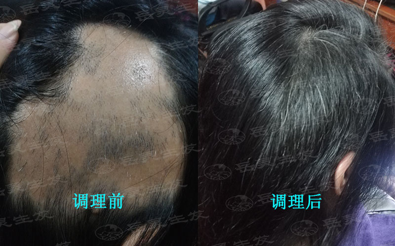 预防脱发应该如何去做呢?