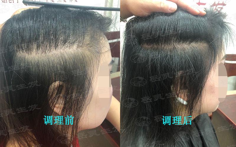 引起脱发的原因有哪些?
