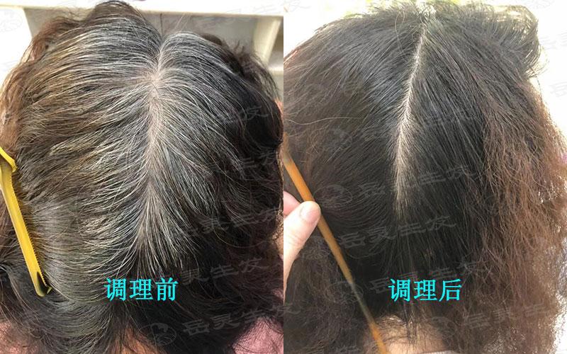 头部不同部位的白发跟什么有关?