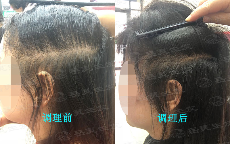 脱发的原因及养发膳食注意事项
