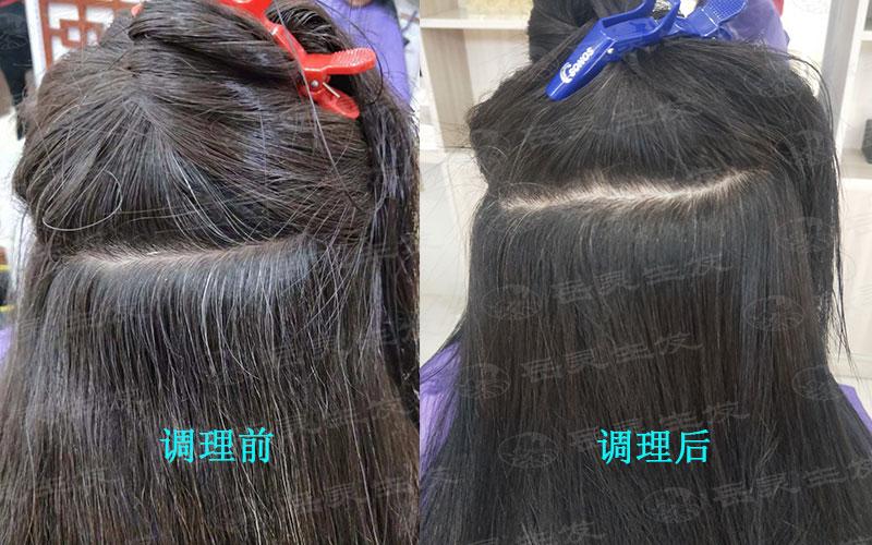 女人长白发都有哪些原因?