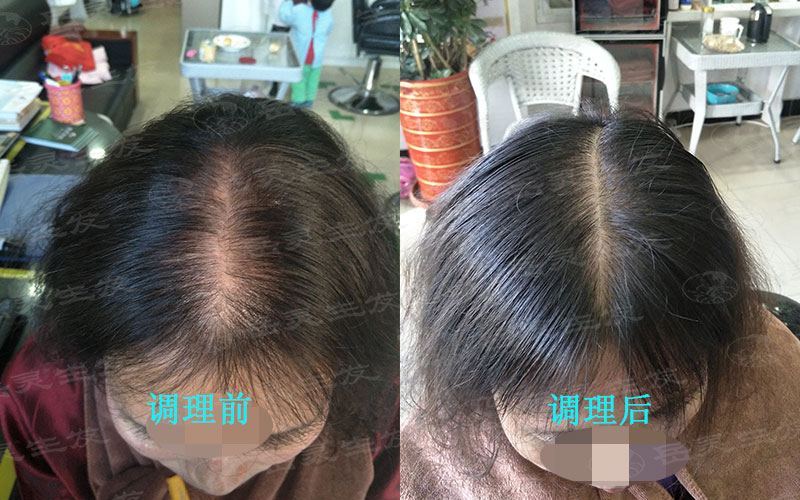 导致女性脱发的原因有哪些?