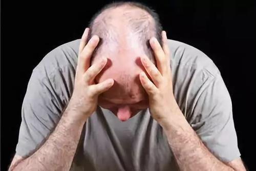 什么养发护发方法可防脱发生发