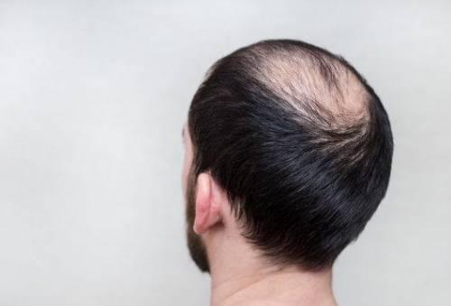 男性如何养发来预防脱发和掉头发