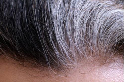 如何健康的将白发转黑你需要看这里