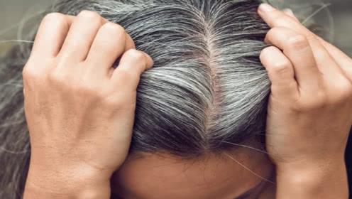 怎么让白头发变黑的养发方法
