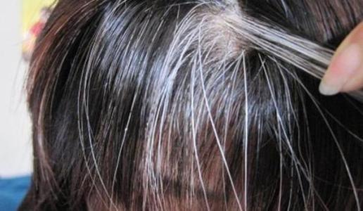 白发转黑发的养发技巧有哪些?