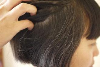 为什么会长白头发你知道吗?