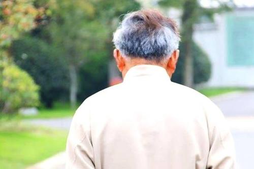 不同部位长白头发的原因有哪些?