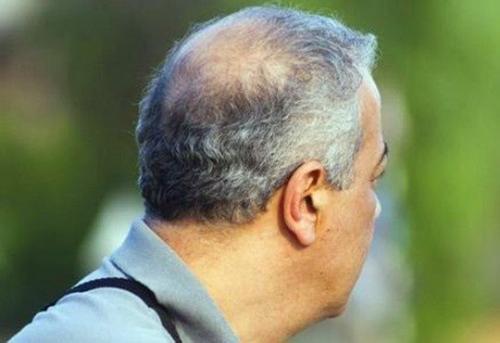 除了染和拔如何养发能将白发转黑发