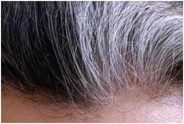 如何养发可以将白头发变黑发