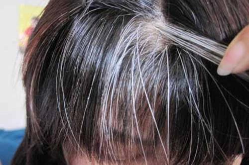 容易长白头发的人应该如何预防白发
