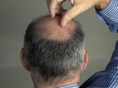 爱掉头发的男人吃什么有利于防脱发