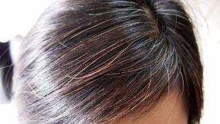 白发转黑发方法有哪些?