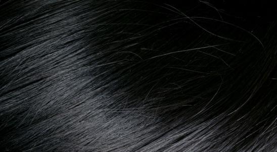 少年白头吃什么可以变黑发