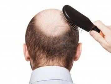 防脱生发的养发护理小技巧